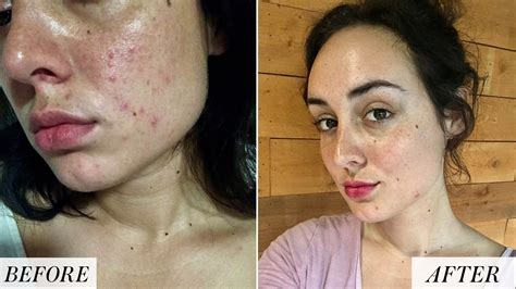 I Quit Drinking Alcohol and Improved My Skin - Before and