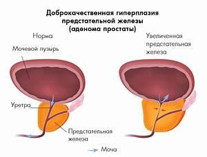 Иммунотерапия при простатите препараты