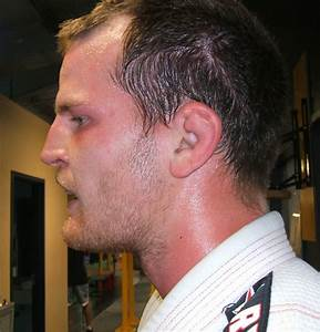 How to Prevent and Treat Cauliflower Ear (and If It Means ...