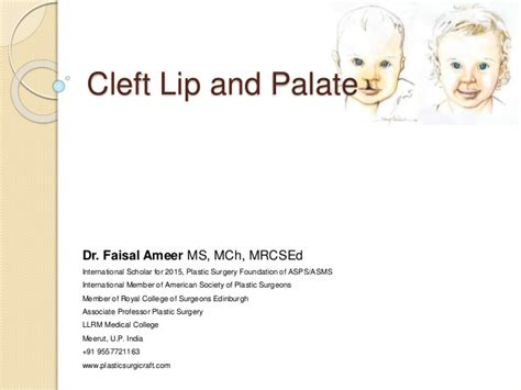 Cleft Lip Charity We Work Cleft Lip And Palate Basics