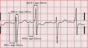 Blood Pressure Graph Alternating Qrs Complex Morphologic Characteristics In A