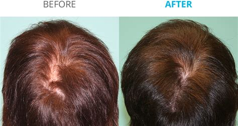 Hair Toppiks New Remedy For Hair Growth