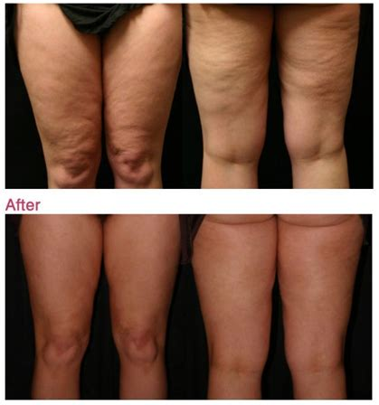 Cellulite Removal London - Cellulite Treatment in London