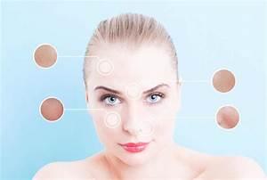 Große Poren Wangen : gro e poren verfeinern mit microroller so einfach geht s ~ Yasmunasinghe.com Haus und Dekorationen