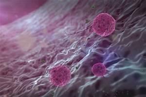 Рецепты лечения папилломы мочевого пузыря у мужчин