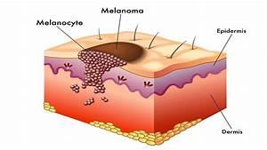 What Is Melanoma