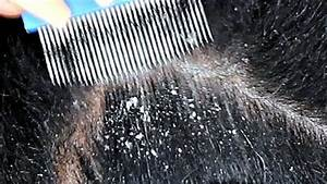 Dandruff Scratching Asmr Using Lice Comb And Nails