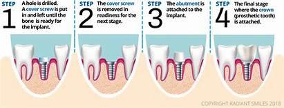 Dental Implants Process Definition Implant Procedure Explained