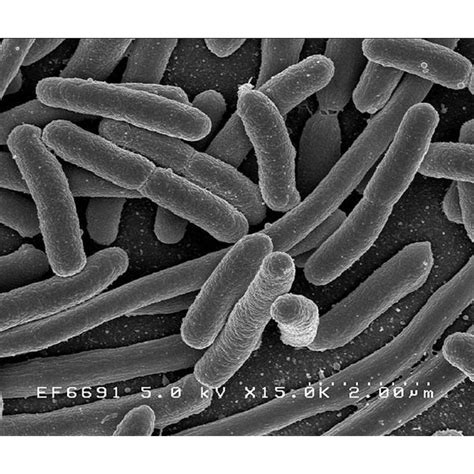 coli bacteria    sick   symptoms