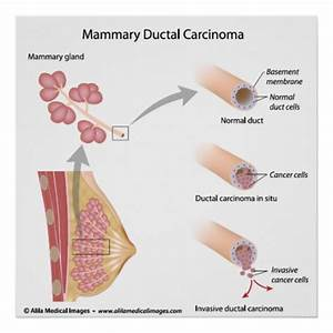 Breast Cancer Ductal Carcinoma   Labelled Diagram