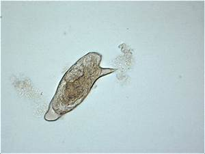 Schistosoma Mansoni Egg
