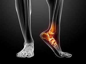 Artrodese no tornozelo