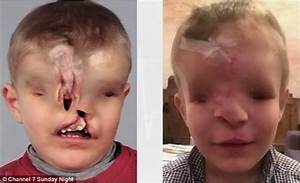 Moroccan boy born with no nose, eyes and a mangled mouth ...