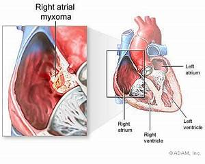 Atrial Myxoma - Symptoms, Diagnosis, Treatment of Atrial Myxoma - NY ... Atrial myxoma