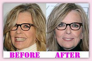 Diane Keaton Plastic Surgery Before And After Pictures to ...
