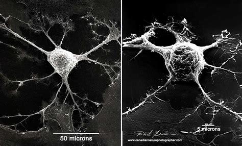Scanning Electron Microscpy Photography by Robert Berdan
