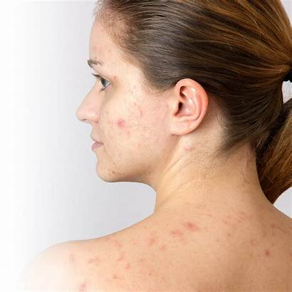 Acne Adult Rid Pimples Adulte Solutions Revamp