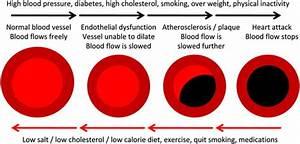 Cardiovascular Implications Of Erectile Dysfunction