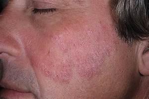 Лечение псориаза мазью карталин