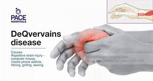 Deqvervains Disease  Causes  Diagnosis And Treatment