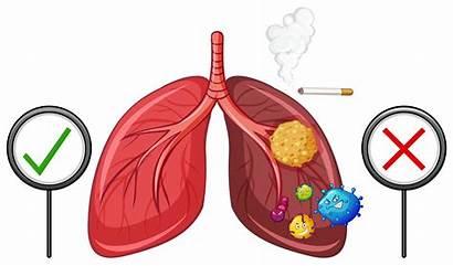 Lungs Unhealthy Healthy Diagram Vector Showing Human