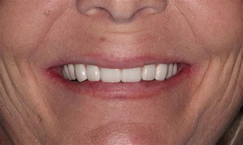dentist  lafayette la drs smith  domingue general