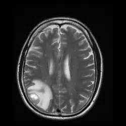 Tumor On Brain MRI