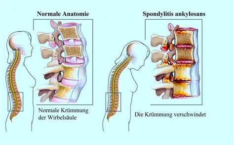 Rückenschmerzen, unterer Rücken, Was tun