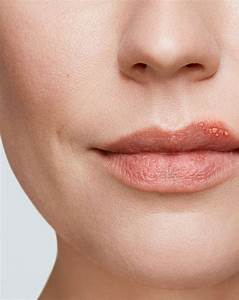 Cold Sore Stages  U2013 Get Rid Of A Cold Sore