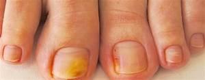 Лечение лазером грибка ногтей в рязани
