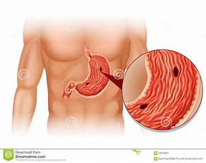 Stomach Ulcer In Human Body Stock Illustration