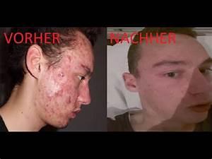 Von extremer Akne und Pickeln zu reiner Haut - YouTube