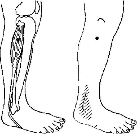 spierpijn scheenbeen
