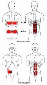 Appendicitis-like Pains
