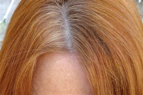 Excessive Hair Shedding Itchy Scalp by Dandruff Vs Scalp Difference And Comparison Diffen