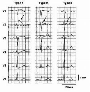 Brugada Syndrome - Causes, ECG, Symptoms, Treatment