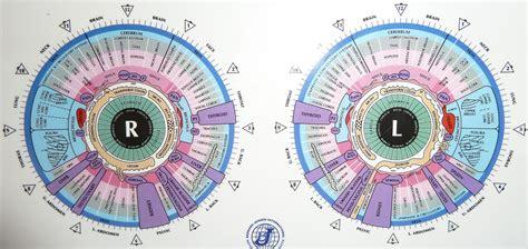 iridology chart iriscope iridology camera iriscope camera iridology chartiridology