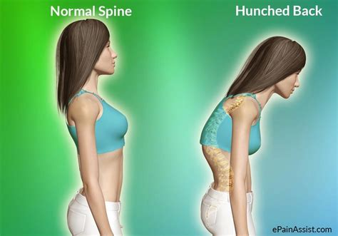 Hunchback Woman Grows Almost 2-inches Thanks to 3D