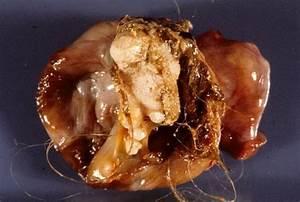 The Monster Tumor