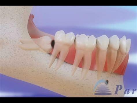 si鑒es de pericoronarite e ção de dentes do siso