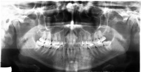 dental ray xray teeth wisdom mouth jaw left surgery room operating panorama nerve dislocation fifth pressing panoramic dreamstime removed
