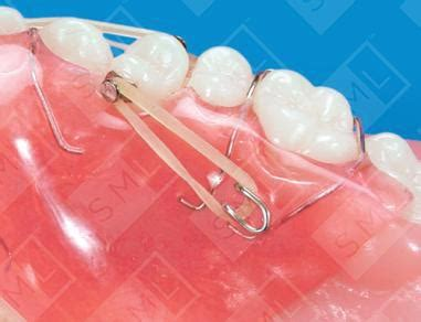 combination fixed removable appliance ul teeth rotating