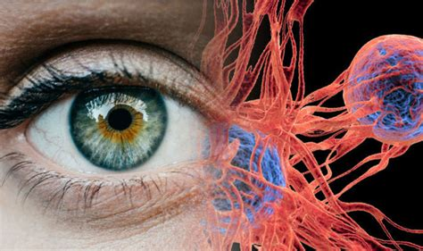 what is the colored part of the eye called eye cancer signs out for a spot on the