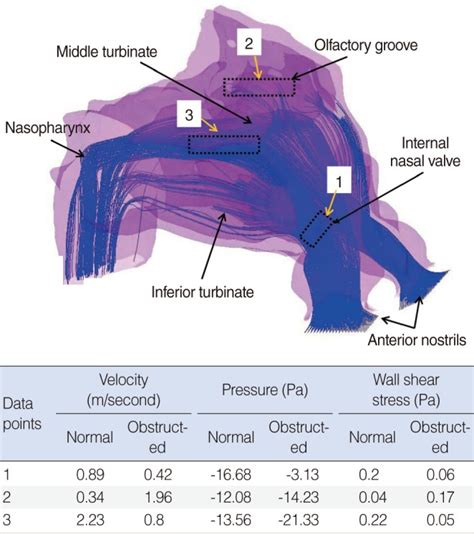 Nasal Airflow Diagram by Three Dimensional 3d Model Of Inspiratory Air