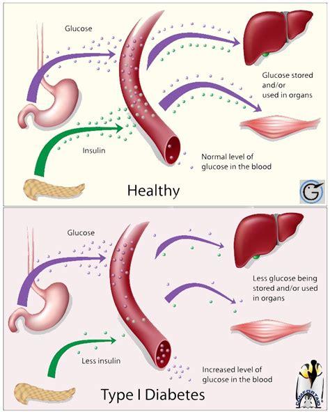 Type 1 Diabetes Health Devations