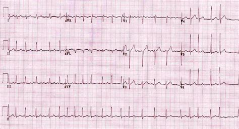 Atrial Fibrillation  Litfl Life In The Fast Lane Medical. Small Business Tax Attorney Movers Odessa Tx. Continental Investors Services. Cordon Bleu Culinary School St Pete Beaches. Security Guards In Los Angeles. Mobile App Development Companies. Alcohol Rehab Centers In Pennsylvania. Barrett Roofing Knoxville Tn. Motorcycle Mechanic School Virginia