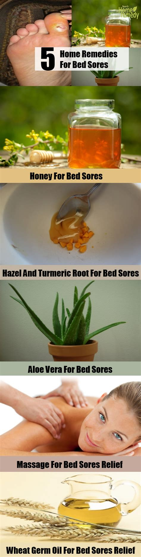 sores bed remedies cure remedy natural treatments shares