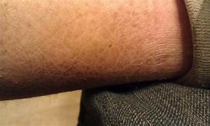 Ichthyosis Vulgaris  Pictures  Diagnosis  And Treatment