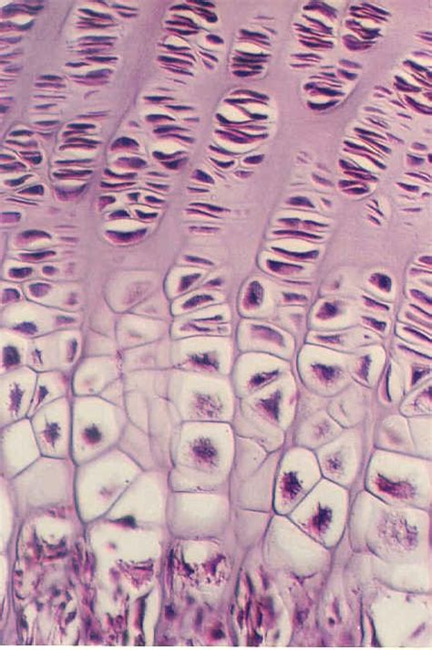 Some bones in the fingers are classified as long bones, even though. ENDOCHONDRAL BONE DEVELOPMENT   Microanatomy Web Atlas   Gwen V. Childs, Ph.D.