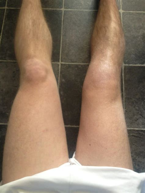 muscle atrophy | kneeobliteration